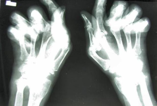 Arthritis Trials