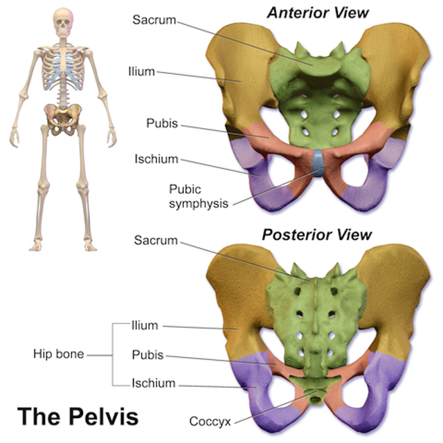 PelvisA British orthopedic surgeon 3D-printed and installed a pelvis in a male patient who needed half his pelvis removed bec